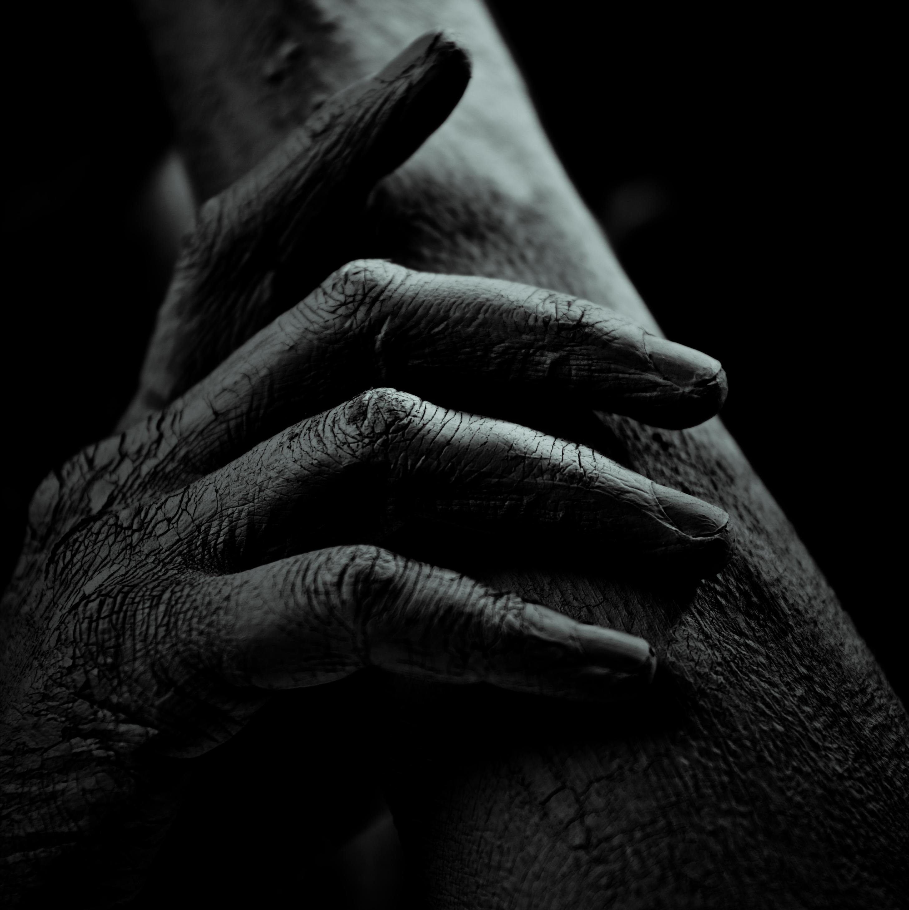 Медицина сухая кожа рук